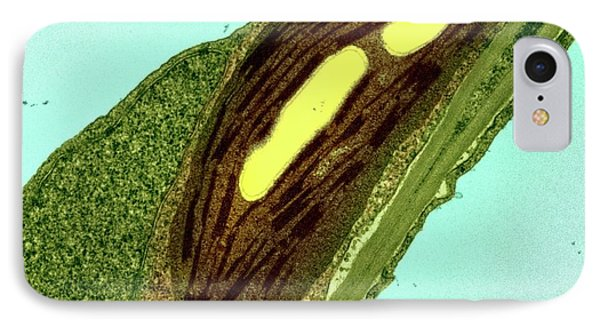 Chloroplasts IPhone Case by Ami Images