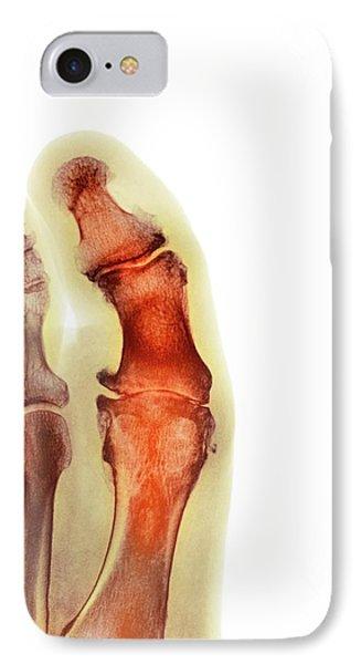 Degenerative Foot Deformation IPhone Case