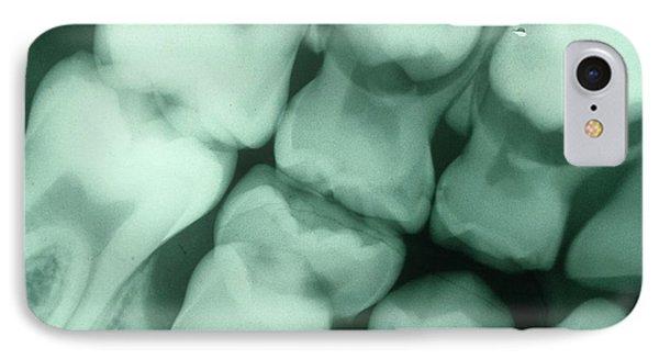 Dental X-ray IPhone Case