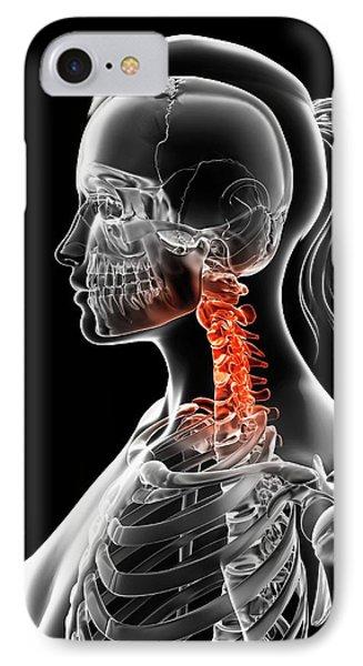 Female Neck Bones IPhone Case by Sebastian Kaulitzki