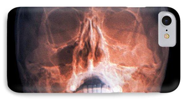 Fractured Skull IPhone Case