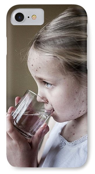 Girl With Chickenpox IPhone Case by Samuel Ashfield