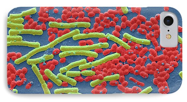 Haemolytic Streptococcus And E Coli IPhone Case by Steve Gschmeissner