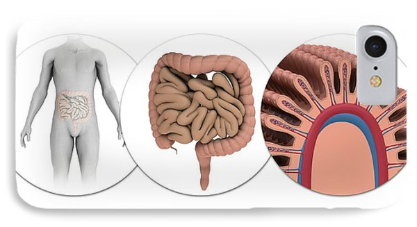Human Intestines IPhone Case by Mikkel Juul Jensen