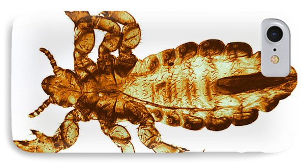 Human Louse, Lm Phone Case by Eric V. Grave