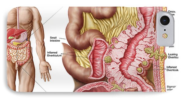 Illustration Of Diverticulosis Phone Case by Stocktrek Images
