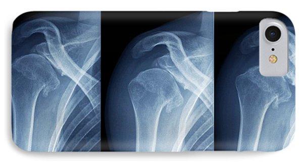 Injured Shoulder IPhone Case by Zephyr
