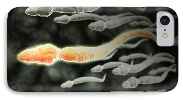 Microscopic View Of Sperm Traveling Phone Case by Stocktrek Images