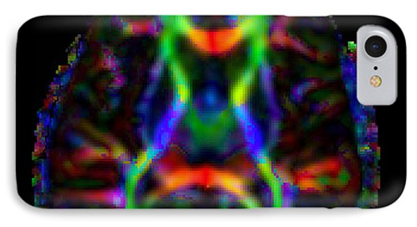 Normal Brain Diffusion Tractography IPhone Case by Living Art Enterprises