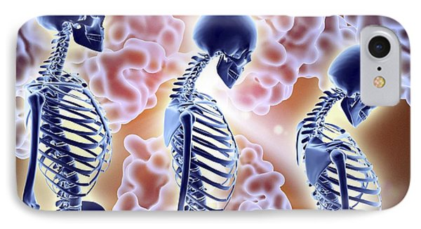 Osteoporosis Treatment With Antibodies IPhone Case by Alfred Pasieka