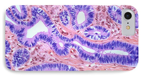 Ovarian Sertoli-leydig Tumour IPhone Case by Steve Gschmeissner