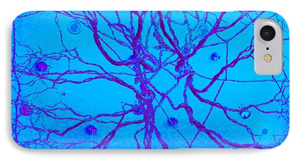 Roots Phone Case by Randall Weidner