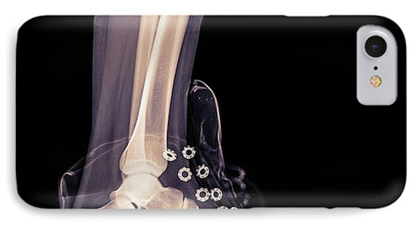 Running Shoe X-ray IPhone Case
