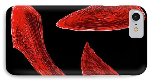 Sickle Cell Anaemia IPhone Case