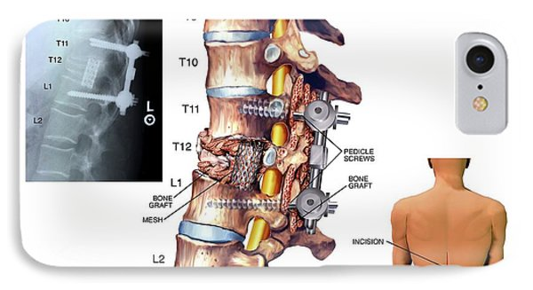Surgery To Fuse The Thoracic Spine IPhone Case