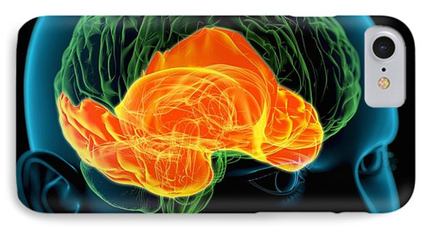 Temporal Lobes In The Brain, Artwork IPhone Case by Roger Harris