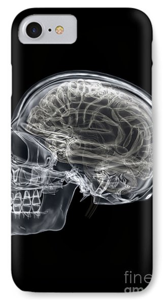 The Skull And Brain IPhone Case