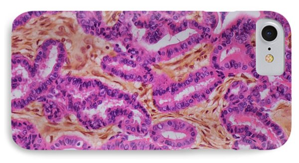 Thyroid Cancer IPhone Case by Steve Gschmeissner