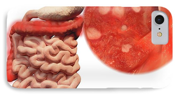 Ulcerative Colitis IPhone Case by Juan Gaertner