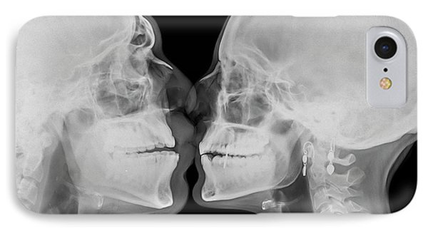 X-ray Kissing IPhone Case by Photostock-israel