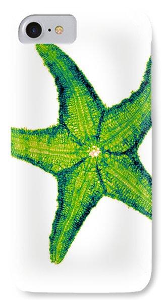 X-ray Of Starfish IPhone Case