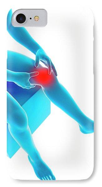 Human Knee Pain IPhone Case by Sebastian Kaulitzki