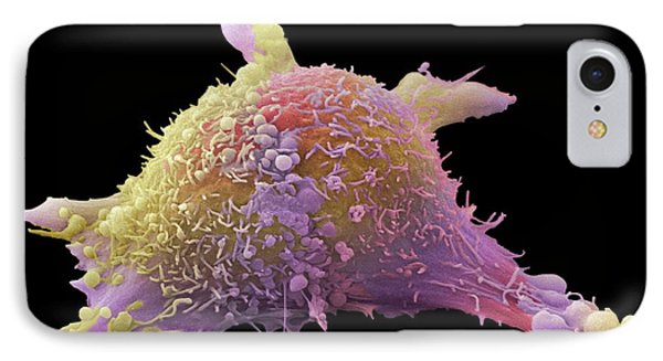 Skin Cancer Cell IPhone Case by Steve Gschmeissner
