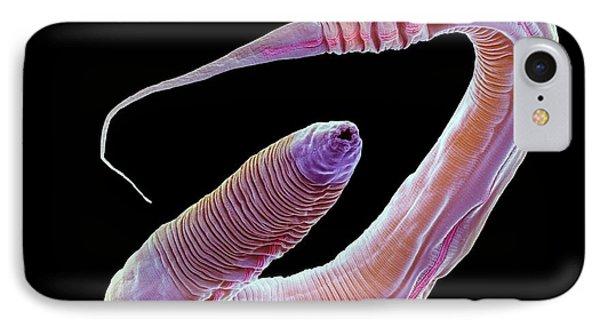 C. Elegans Worm IPhone Case by Steve Gschmeissner