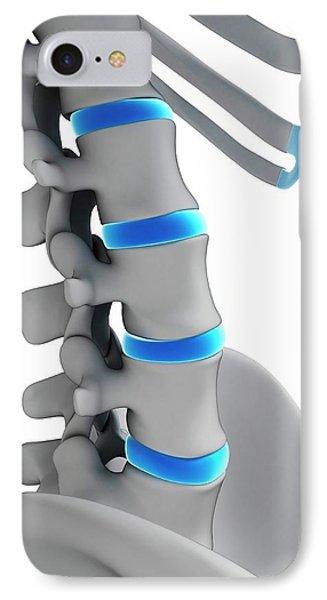 Human Spinal Discs IPhone Case by Sebastian Kaulitzki