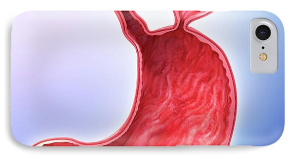 Human Stomach With Hernia IPhone Case