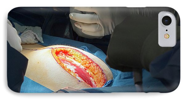 Hysterectomy In Endometrial Cancer IPhone Case