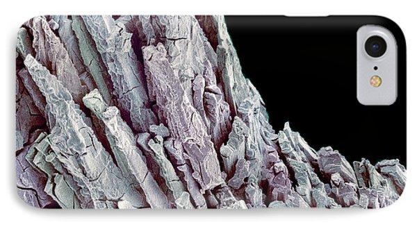 Kidney Stone IPhone Case by Susumu Nishinaga