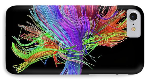 White Matter Fibres Of The Human Brain IPhone Case
