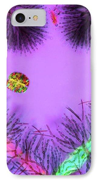 Desmid And Red Algae IPhone Case