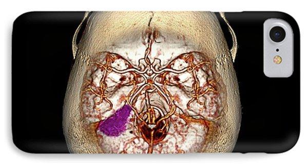 Brain Tumour IPhone Case by Zephyr