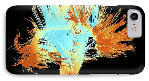 White Matter Fibres Of The Human Brain IPhone Case by Alfred Pasieka