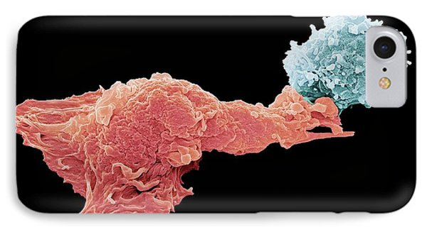 Antigen Presentation IPhone Case by Steve Gschmeissner