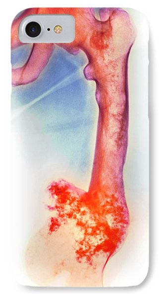 Bone Tumour IPhone Case by Mike Devlin