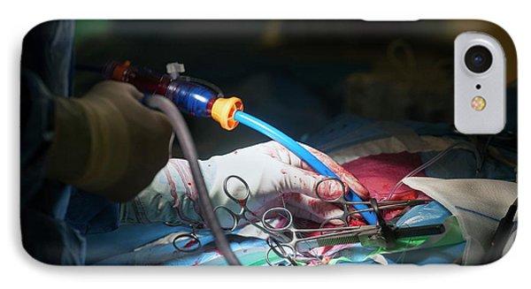 Cardiac Catheterization IPhone Case