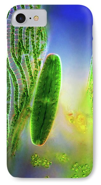 Desmid And Sphagnum Moss IPhone Case