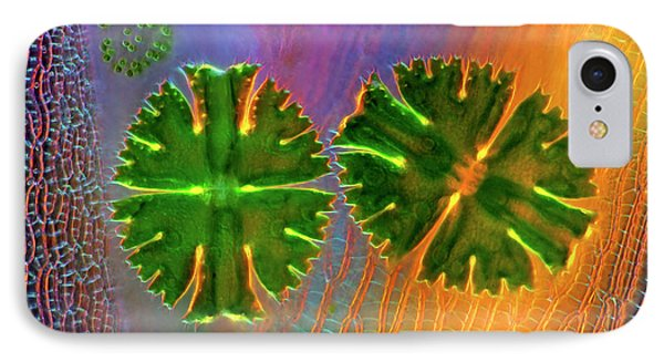 Desmids And Sphagnum Moss IPhone Case by Marek Mis