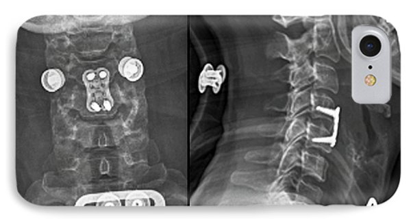 Herniated Spinal Disc After Treatment IPhone Case by Zephyr