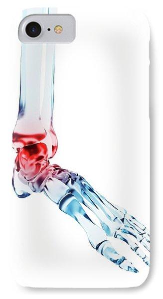 Human Ankle Pain IPhone Case by Sebastian Kaulitzki