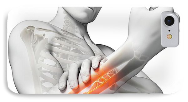 Human Arm Pain IPhone Case