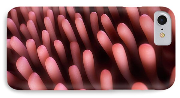 Human Intestinal Lining IPhone Case by Sebastian Kaulitzki