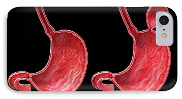Human Stomach With Hernia IPhone Case by Pixologicstudio