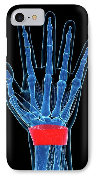 Human Wrist IPhone Case