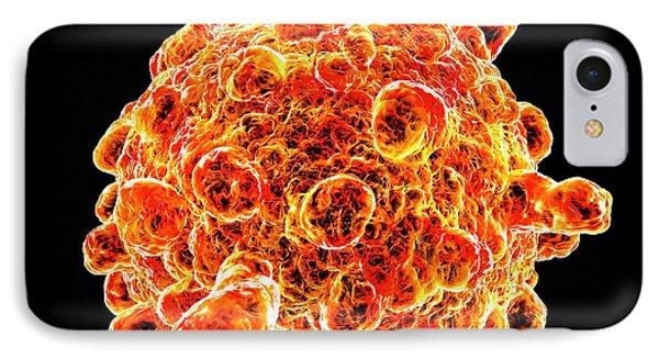 Infantile Gastroenteritis Virus IPhone Case