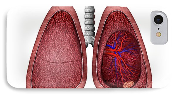 Lung Cancer IPhone Case by Carol & Mike Werner
