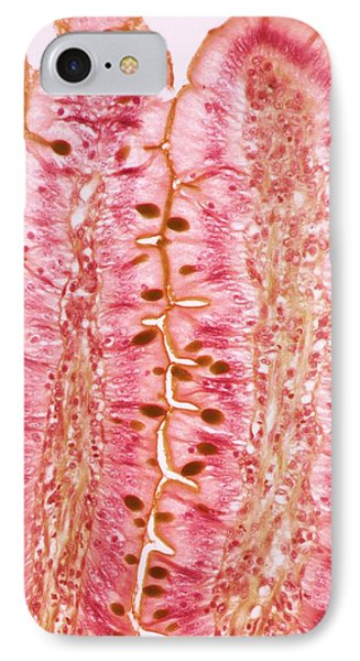 Small Intestine IPhone Case by Steve Gschmeissner